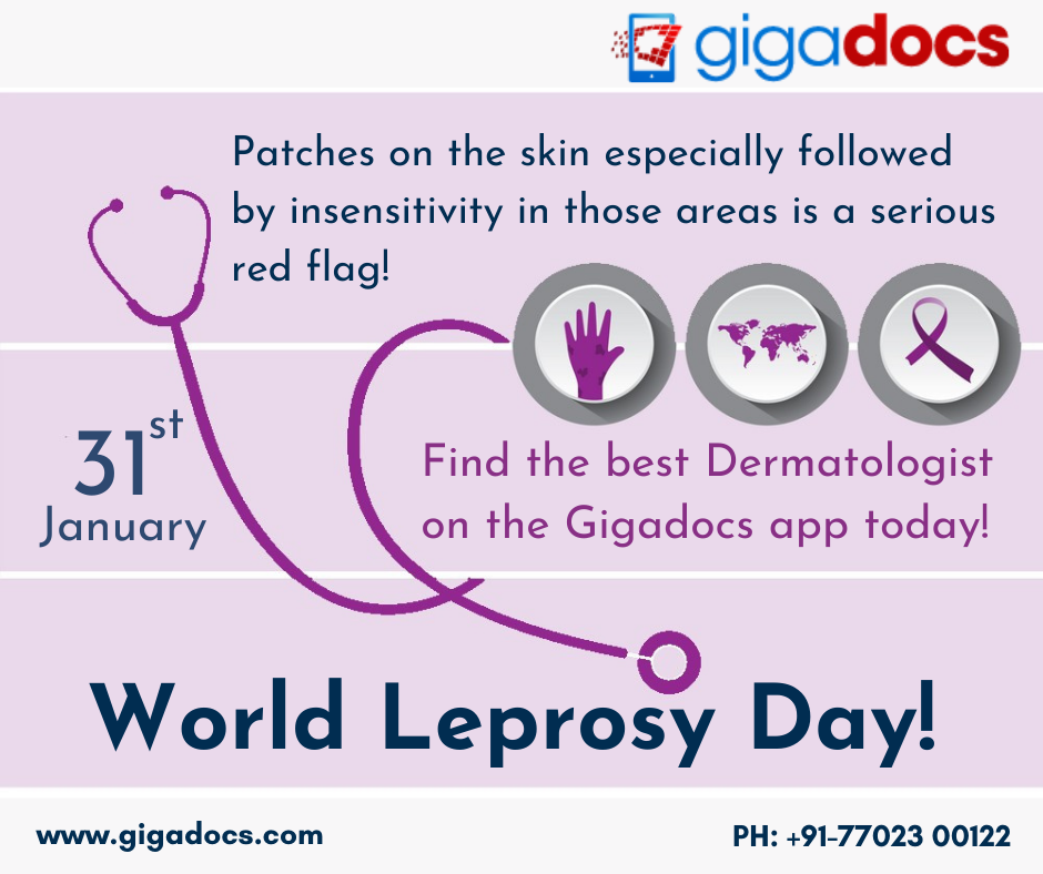 World Leprosy Day-Leprosy in India Diagnosis, Treatment and Cure
